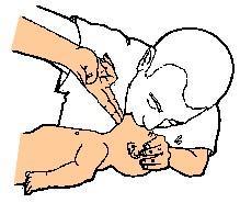 réanimation bébé : bouche-à-bouche